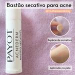 Bastão secativo para acne da payot funciona? RESENHA