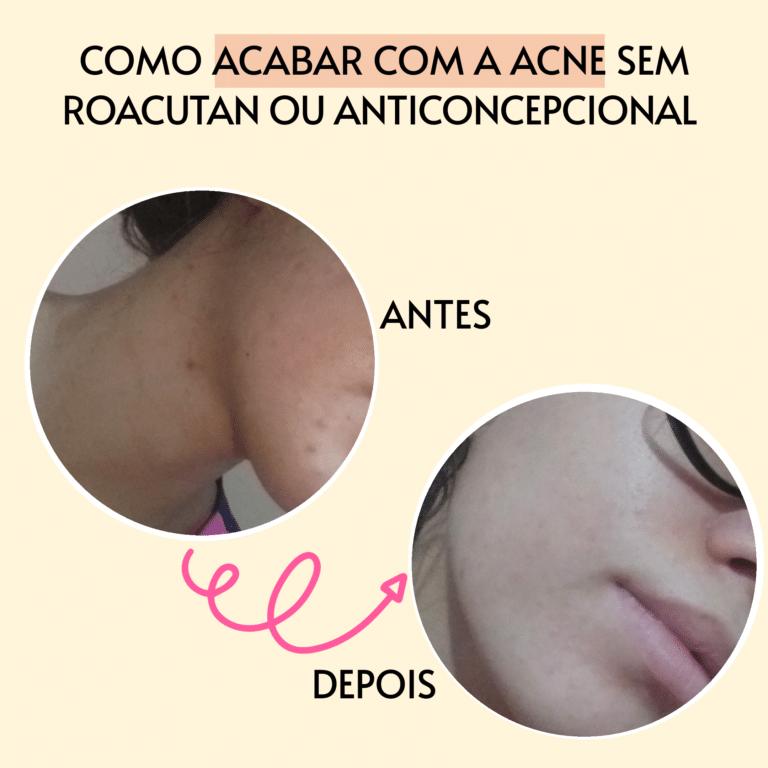 Como acabar com a acne sem roacutan e anticoncepcional