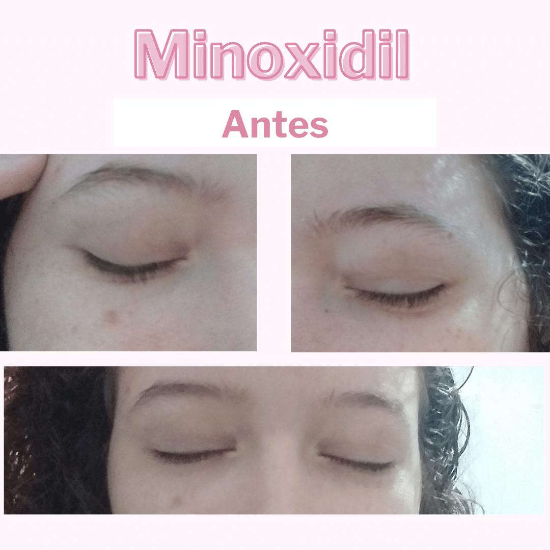 minoxidil 5% na sobrancelha antes