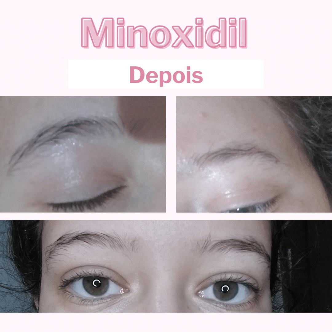 minoxidil 5% na sobrancelha depois
