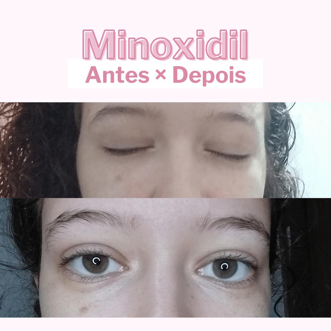 minoxidil 5% na sobrancelha antes e depois