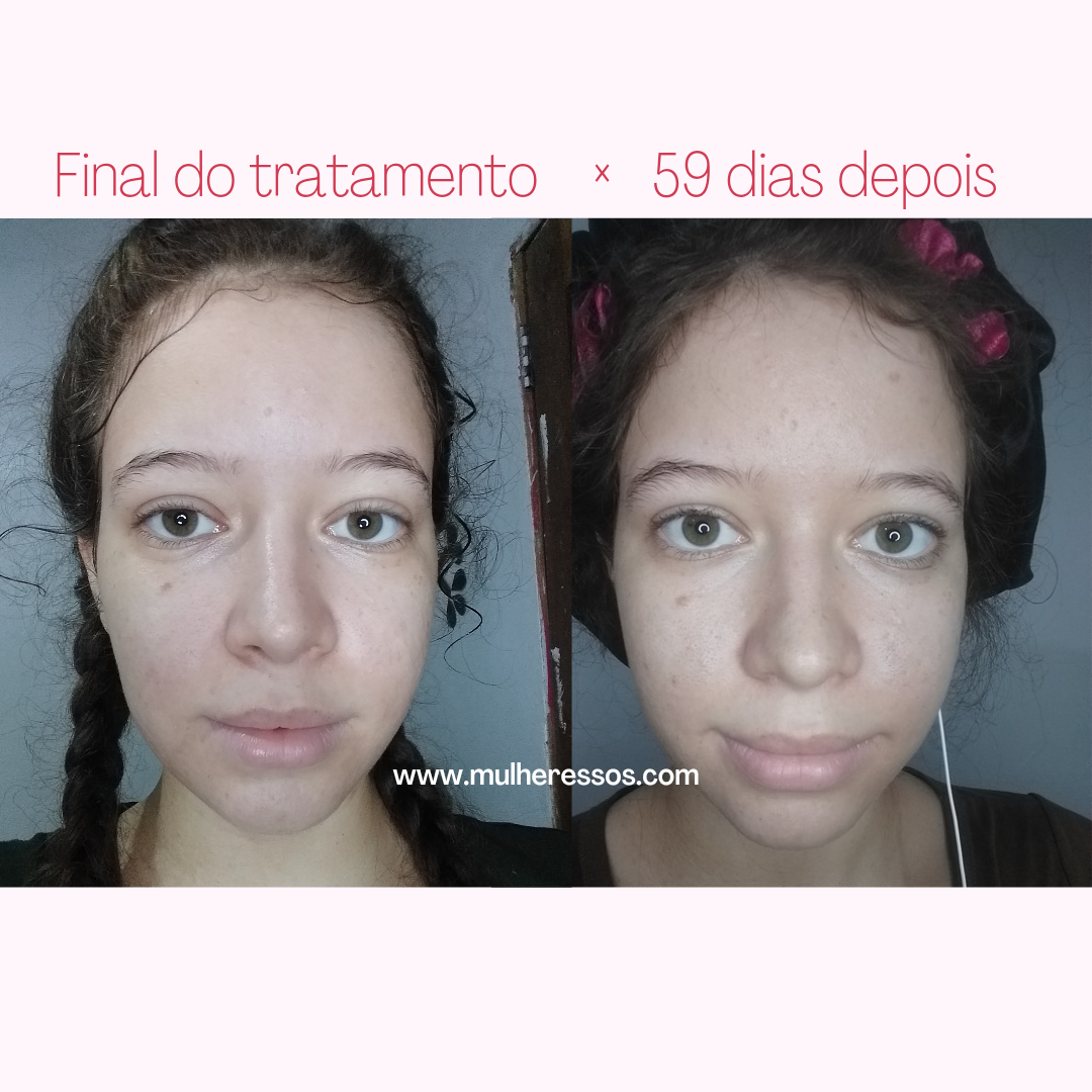 Antes e depois com Minoxidil 5%nas sobrancelhas. Parei de usar Minoxidil, o pelo caiu? Veja agora